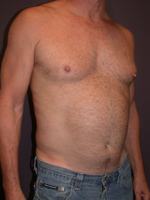 Liposuction Gallery - Patient 25852500 - Image 3