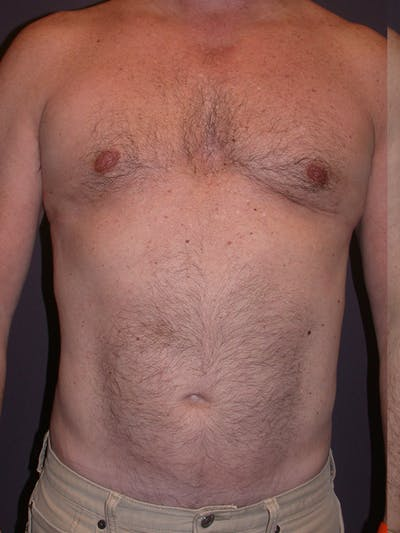 High Definition Liposuction Gallery - Patient 31198068 - Image 2