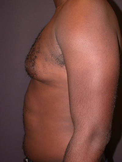 Male Liposuction Gallery - Patient 31198107 - Image 1