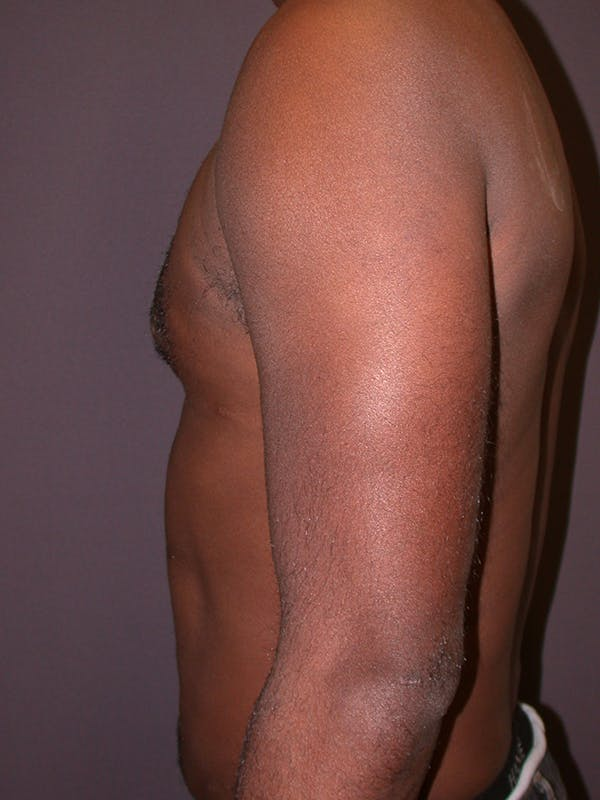 Male Liposuction Gallery - Patient 31198107 - Image 2