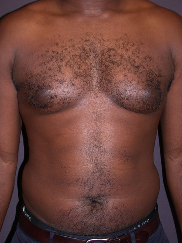 Male Liposuction Gallery - Patient 31198107 - Image 3