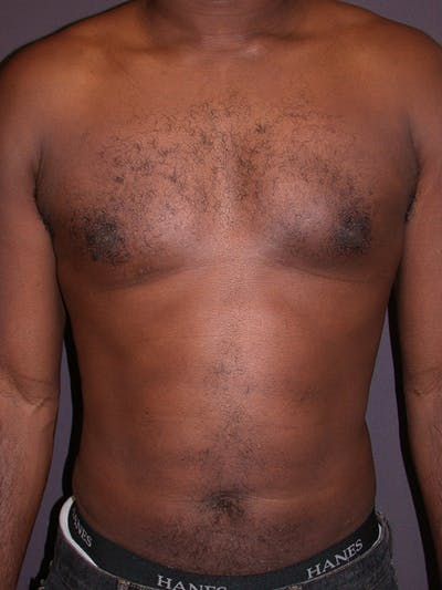 Male Liposuction Gallery - Patient 31198107 - Image 4