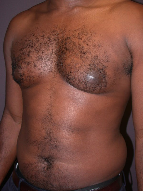 Male Liposuction Gallery - Patient 31198107 - Image 5