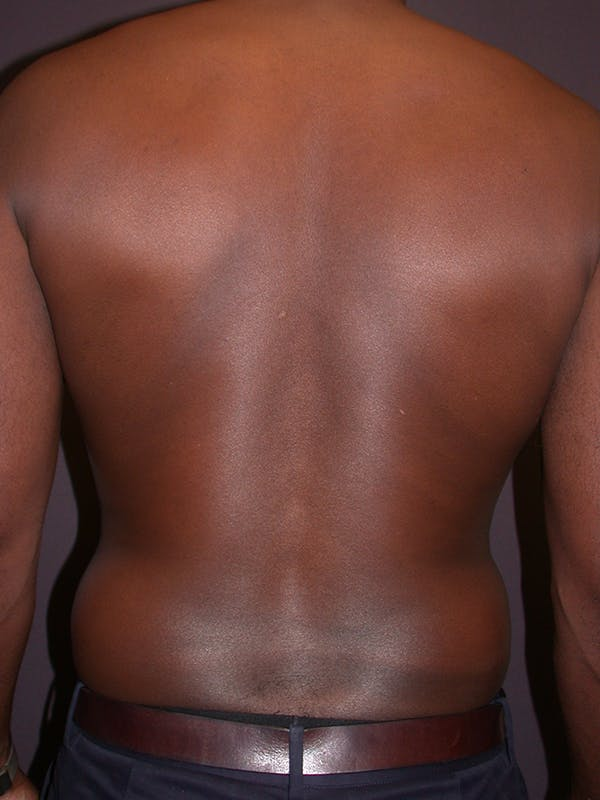 Male Liposuction Gallery - Patient 31198107 - Image 7