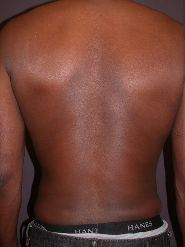Male Liposuction Gallery - Patient 31198107 - Image 8