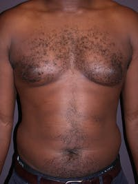 Liposuction Gallery - Patient 31198116 - Image 1
