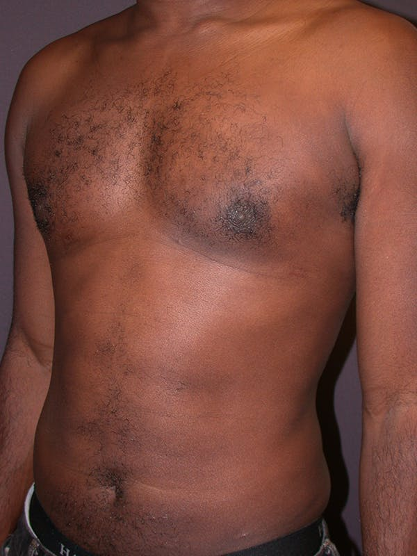 Liposuction Gallery - Patient 31198116 - Image 6