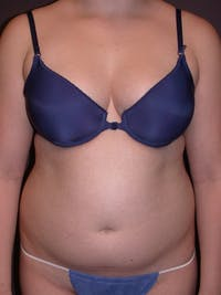 Liposuction Gallery - Patient 31382055 - Image 1