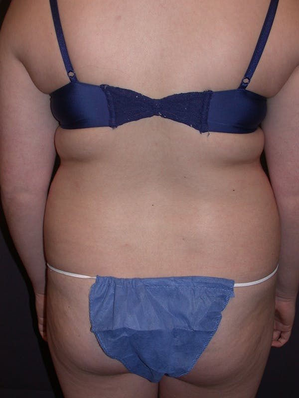 Liposuction Gallery - Patient 31382055 - Image 7