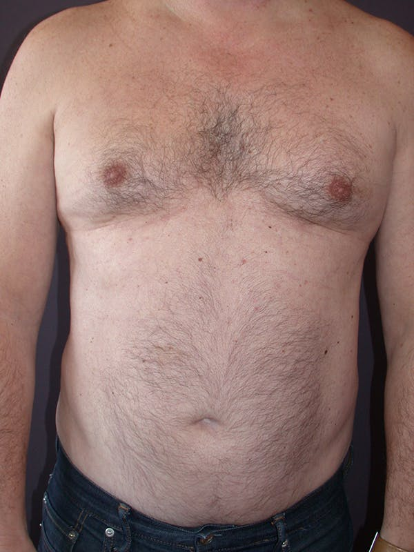Male Liposuction Gallery - Patient 31197706 - Image 1