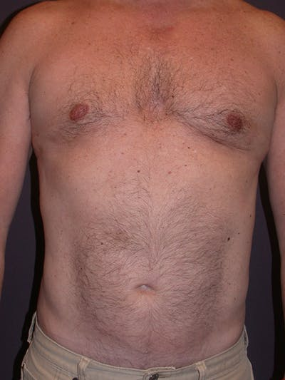 Male Liposuction Gallery - Patient 31197706 - Image 2