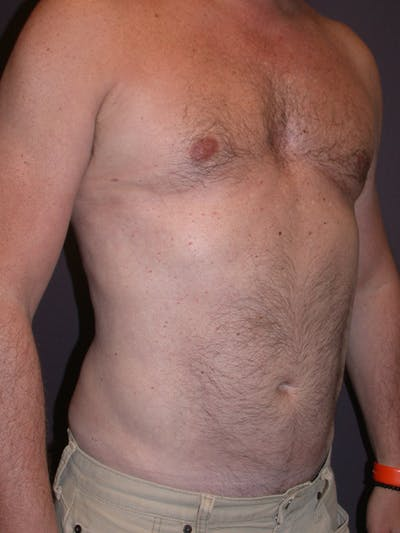 Male Liposuction Gallery - Patient 31197706 - Image 4