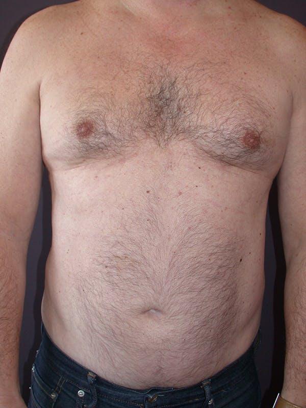 Gynecomastia Gallery - Patient 31198002 - Image 1