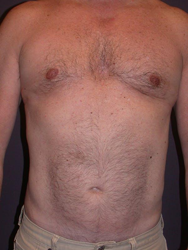 Gynecomastia Gallery - Patient 31198002 - Image 2