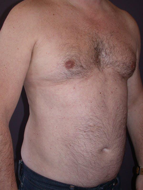 Gynecomastia Gallery - Patient 31198002 - Image 3