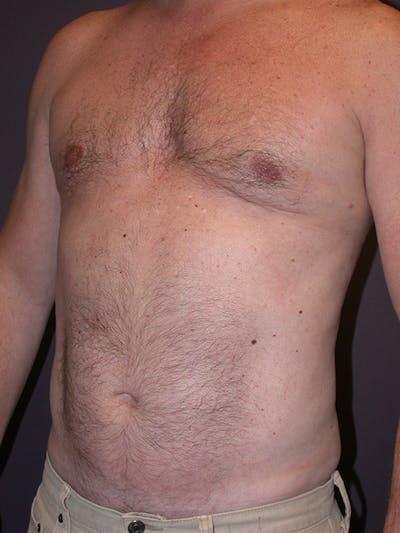 Gynecomastia Gallery - Patient 31198002 - Image 6