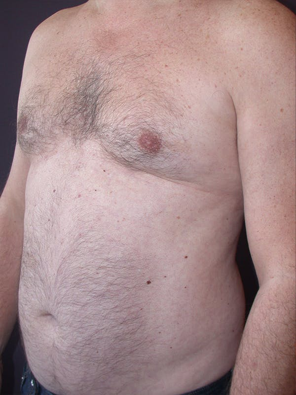 High Definition Liposuction Gallery - Patient 31198068 - Image 5