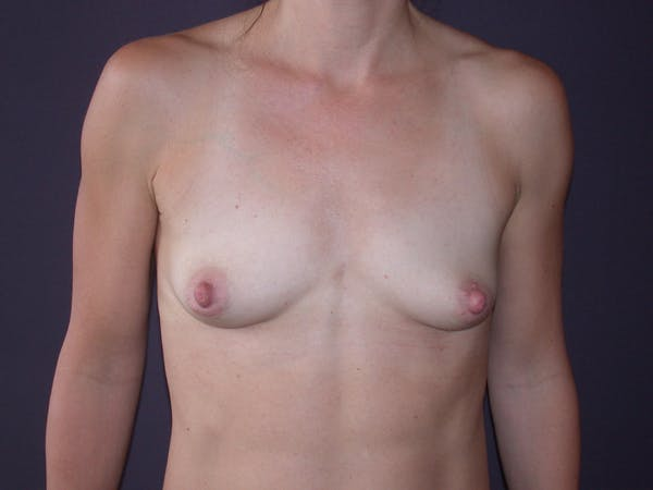 Breast Augmentation Gallery - Patient 40632786 - Image 1