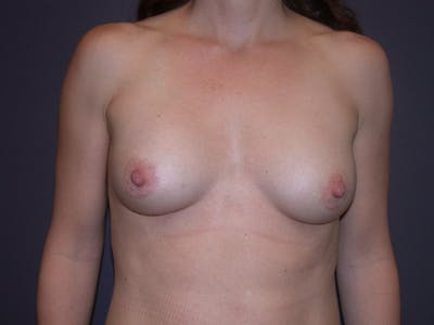 Breast Augmentation Gallery - Patient 40632786 - Image 2