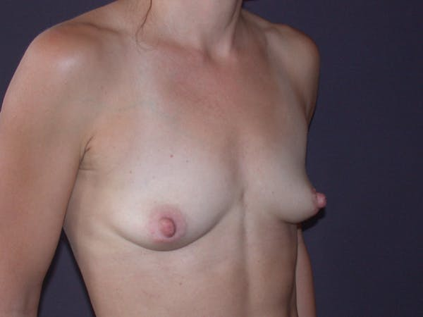 Breast Augmentation Gallery - Patient 40632786 - Image 3
