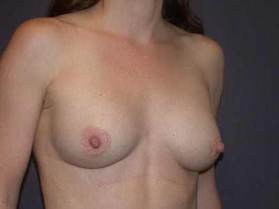 Breast Augmentation Gallery - Patient 40632786 - Image 4