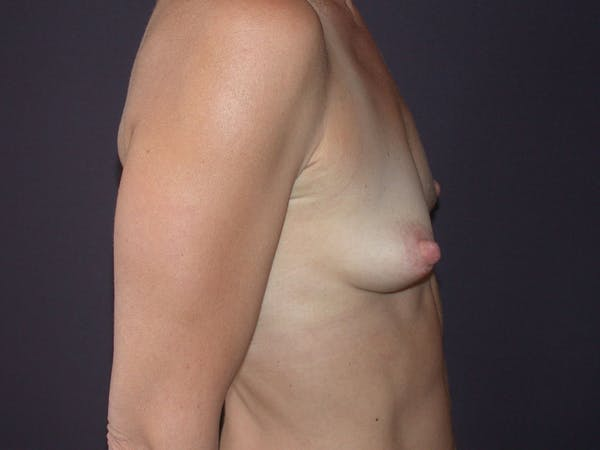 Breast Augmentation Gallery - Patient 40632786 - Image 5