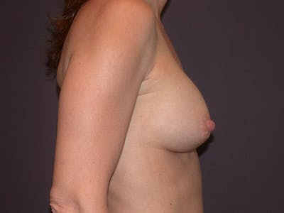 Breast Augmentation Gallery - Patient 40632786 - Image 6