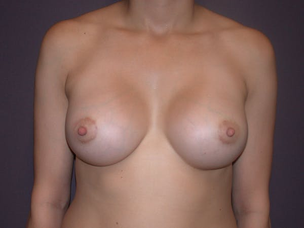 Breast Augmentation Gallery - Patient 40632787 - Image 2