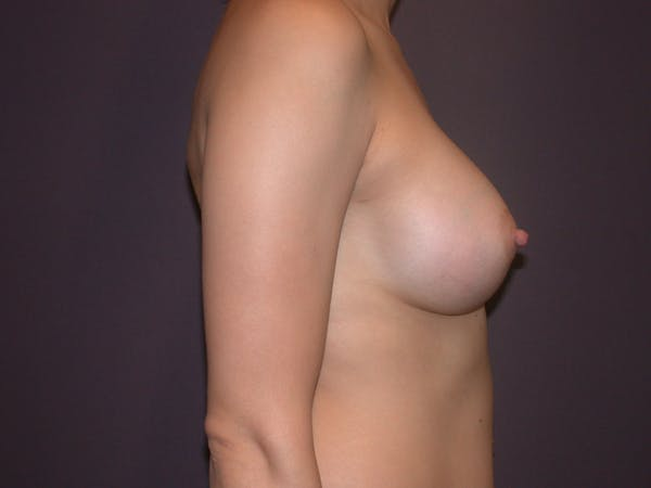 Breast Augmentation Gallery - Patient 40632787 - Image 6