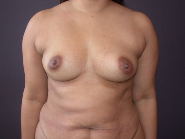 Breast Augmentation with Fat Gallery - Patient 40632923 - Image 1