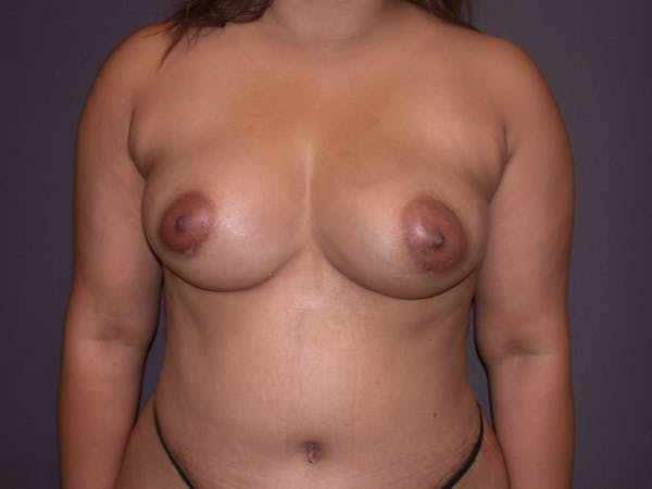 Breast Augmentation with Fat Gallery - Patient 40632923 - Image 2