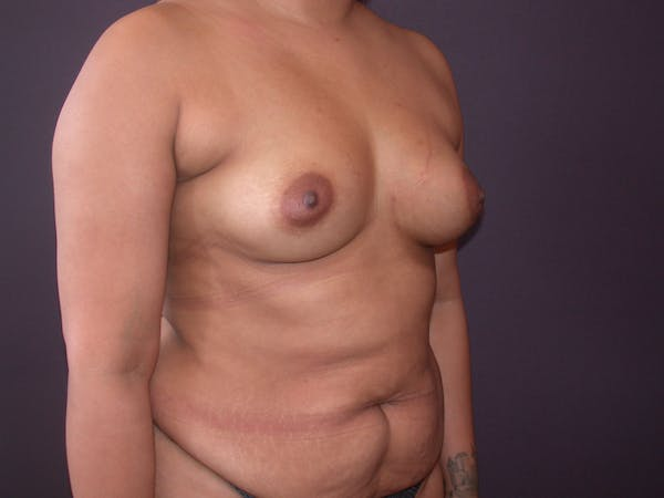 Breast Augmentation with Fat Gallery - Patient 40632923 - Image 3
