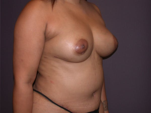Breast Augmentation with Fat Gallery - Patient 40632923 - Image 4