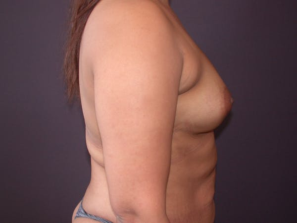 Breast Augmentation with Fat Gallery - Patient 40632923 - Image 5