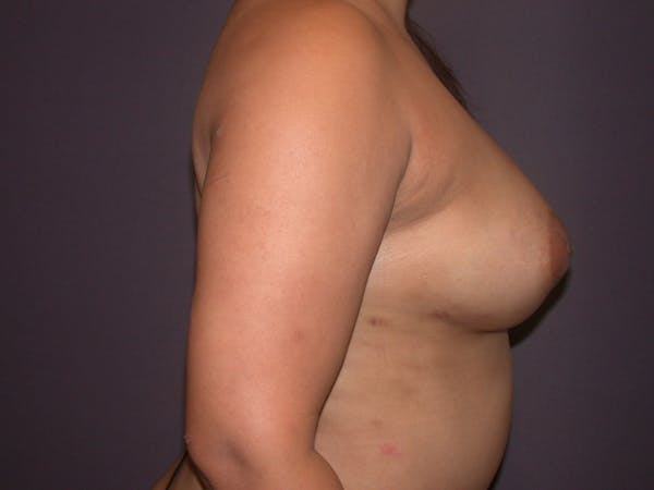 Breast Augmentation with Fat Gallery - Patient 40632923 - Image 6