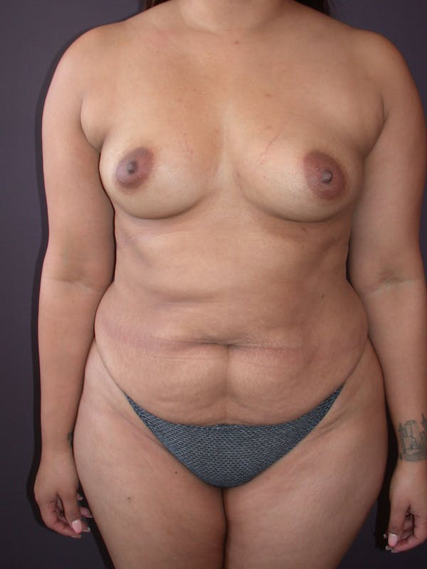 Mommy Makeover Gallery - Patient 40633057 - Image 1