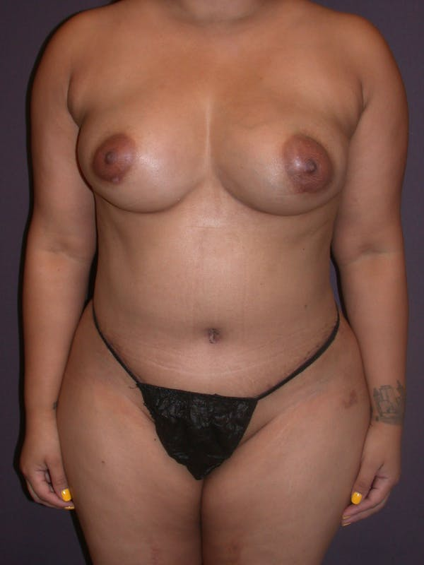 Mommy Makeover Gallery - Patient 40633057 - Image 2