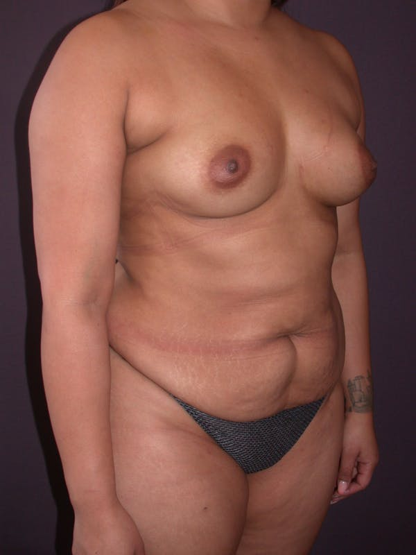 Mommy Makeover Gallery - Patient 40633057 - Image 3