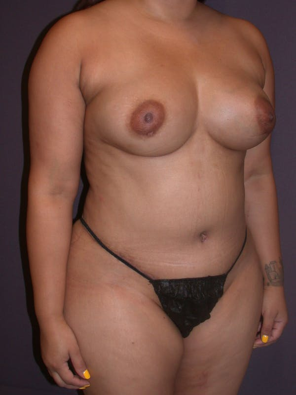 Mommy Makeover Gallery - Patient 40633057 - Image 4