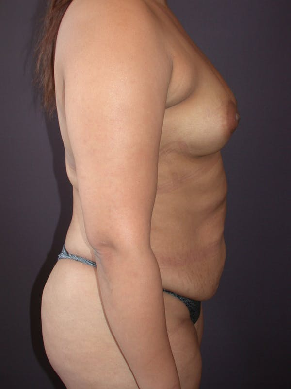 Mommy Makeover Gallery - Patient 40633057 - Image 5