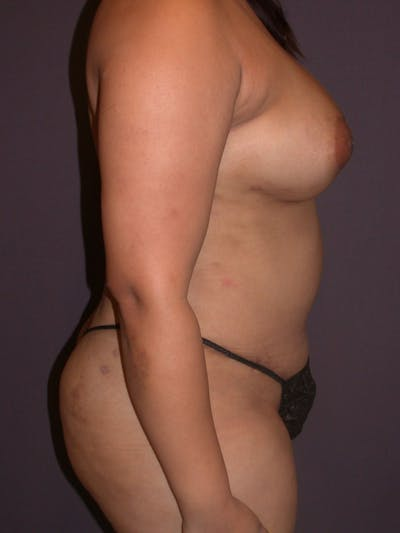 Mommy Makeover Gallery - Patient 40633057 - Image 6