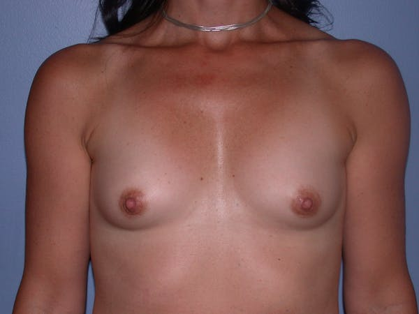 Breast Augmentation Gallery - Patient 40633242 - Image 1