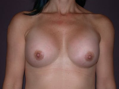 Breast Augmentation Gallery - Patient 40633242 - Image 2