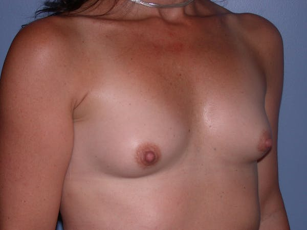 Breast Augmentation Gallery - Patient 40633242 - Image 3