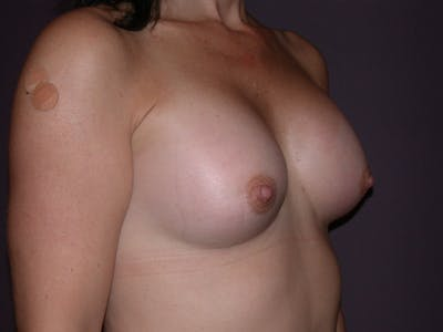 Breast Augmentation Gallery - Patient 40633242 - Image 4