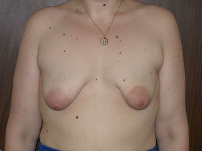 Tubular Breasts Gallery - Patient 40633294 - Image 1