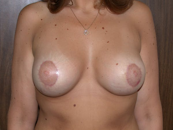 Tubular Breasts Gallery - Patient 40633294 - Image 2