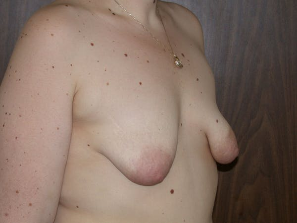 Tubular Breasts Gallery - Patient 40633294 - Image 3