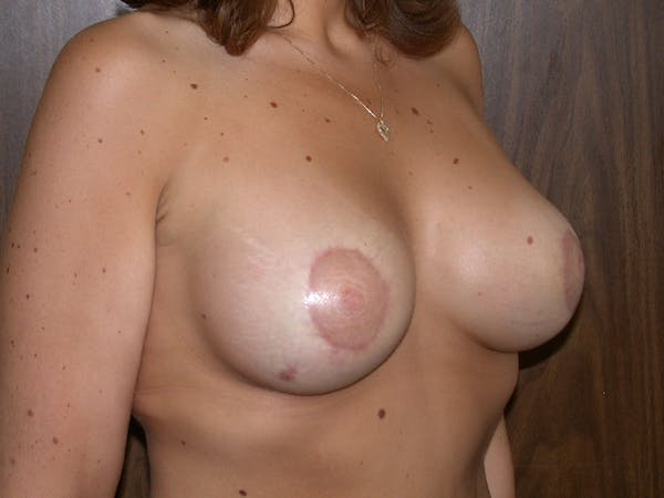 Tubular Breasts Gallery - Patient 40633294 - Image 4