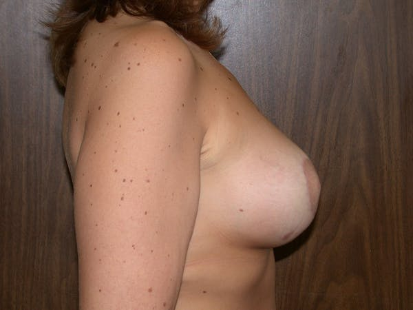 Tubular Breasts Gallery - Patient 40633294 - Image 6